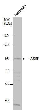 Western blot - Anti-Axin 1 antibody (ab272889)