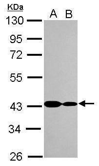 Western blot - Anti-ANKRD1 antibody (ab272894)