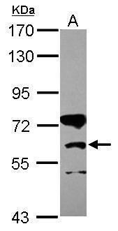 Western blot - Anti-CPT1B antibody (ab272896)