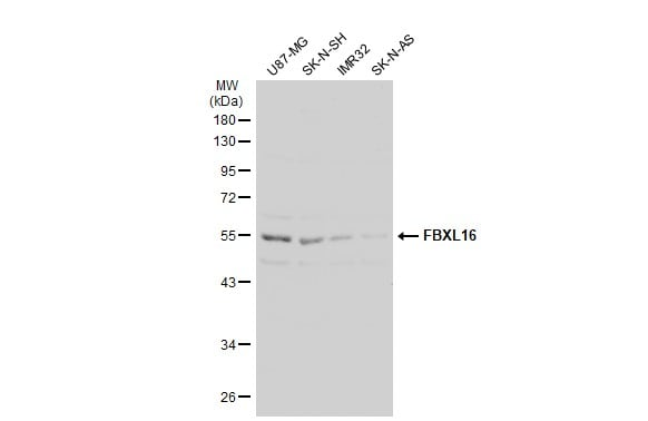 Western blot - Anti-FBXL16 antibody (ab272898)