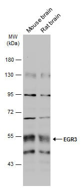 Western blot - Anti-EGR3 antibody (ab272903)