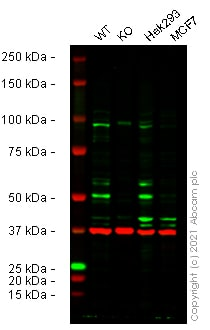 Western blot - Anti-SS18 antibody (ab272904)