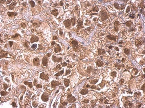 Immunohistochemistry (Formalin/PFA-fixed paraffin-embedded sections) - Anti-ARID1A antibody (ab272905)