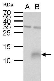 Western blot - Anti-Elafin/ESI antibody (ab272906)