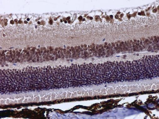 Immunohistochemistry (Formalin/PFA-fixed paraffin-embedded sections) - Anti-POU4F3 antibody (ab272908)