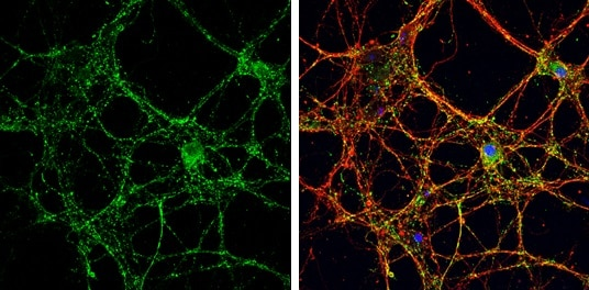 Immunocytochemistry/ Immunofluorescence - Anti-VGluT1 antibody (ab272913)
