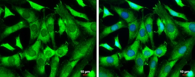 Immunocytochemistry/ Immunofluorescence - Anti-WAVE 1 antibody (ab272916)