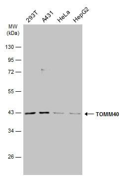 Western blot - Anti-TOMM40 antibody (ab272921)