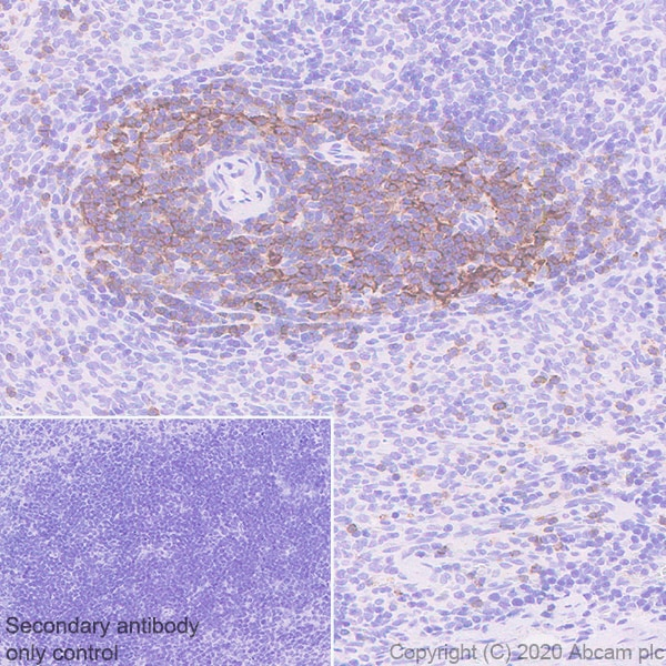 Immunohistochemistry (Formalin/PFA-fixed paraffin-embedded sections) - Anti-CCR7 antibody [EPR23192-57] - BSA and Azide free (ab272938)