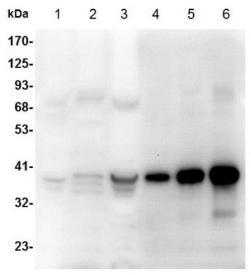 Western blot - Anti-AKR1B10 antibody (ab273011)