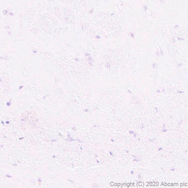 Immunohistochemistry (Formalin/PFA-fixed paraffin-embedded sections) - Anti-Pit1 antibody [EPR23555-203] (ab273048)