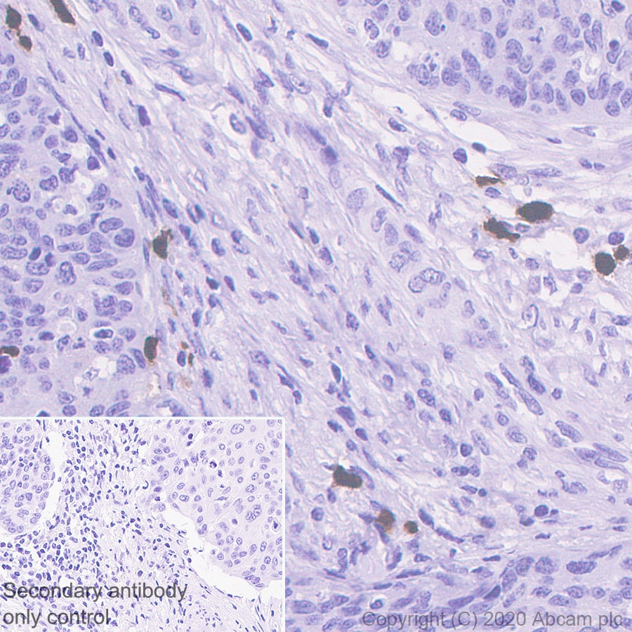 Immunohistochemistry (Formalin/PFA-fixed paraffin-embedded sections) - Anti-S100A12/CGRP antibody [EPR23677-111] - BSA and Azide free (ab273051)