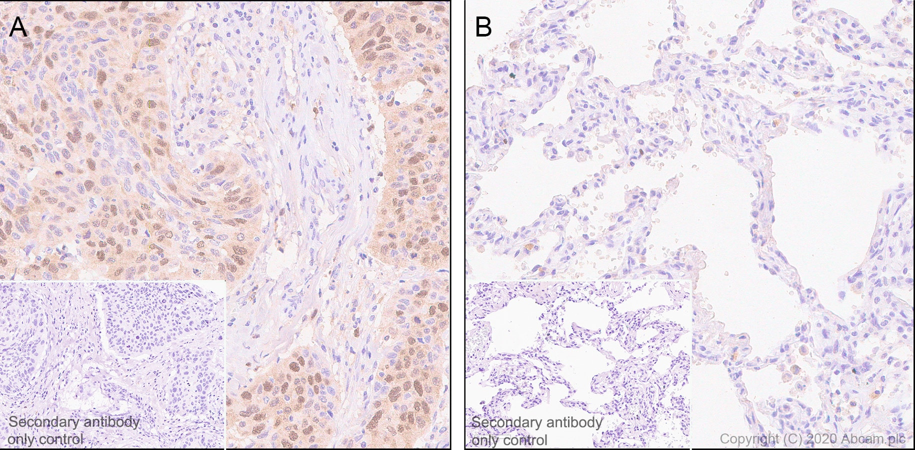 Immunohistochemistry (Formalin/PFA-fixed paraffin-embedded sections) - Anti-ZWINT antibody [EPR23440-96] - BSA and Azide free (ab273052)