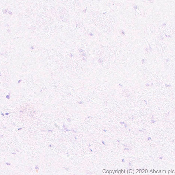 Immunohistochemistry (Formalin/PFA-fixed paraffin-embedded sections) - Anti-Pit1 antibody [EPR23555-203] - BSA and Azide free (ab273057)