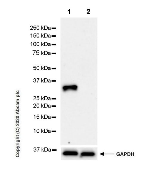 Western blot - Anti-Pit1 antibody [EPR23555-203] - BSA and Azide free (ab273057)
