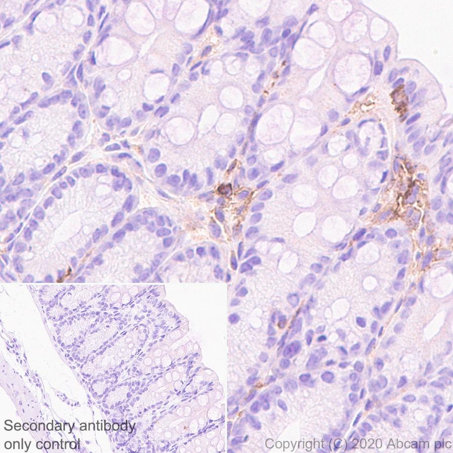 Immunohistochemistry (Formalin/PFA-fixed paraffin-embedded sections) - Anti-CD40 antibody [EPR23890-151] - BSA and Azide free (ab273098)