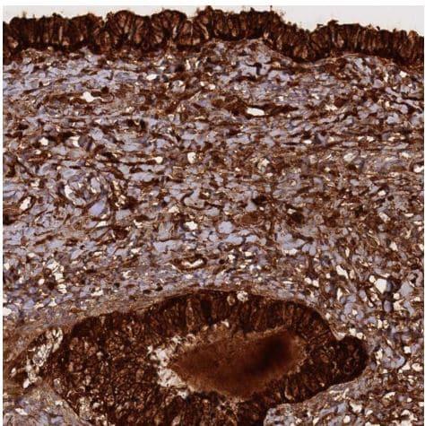 Immunohistochemistry (Formalin/PFA-fixed paraffin-embedded sections) - Anti-HE4 antibody (ab273130)