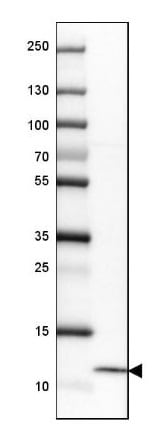 Western blot - Anti-HE4 antibody (ab273130)