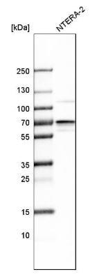Western blot - Anti-IMP3 antibody (ab273131)
