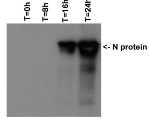 Western blot - Anti-SARS Nucleocapsid Protein antibody [6H3] (ab273434)