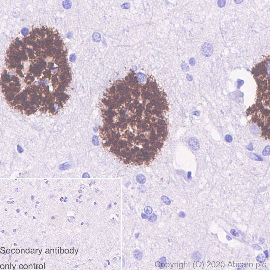 Immunohistochemistry (Formalin/PFA-fixed paraffin-embedded sections) - Not generated yet. (ab273483)