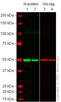 Western blot - Recombinant Human coronavirus SARS-CoV-2 nucleocapsid protein (His tag) (ab273530)