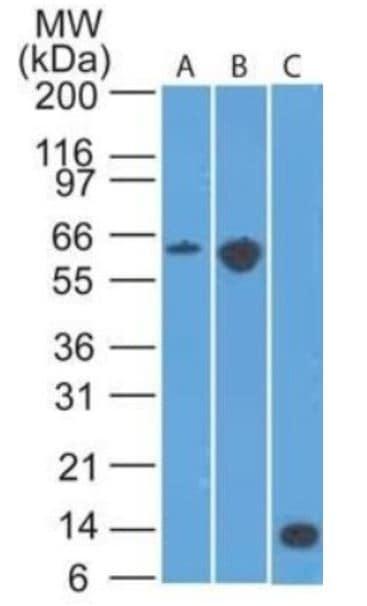 Western blot - Anti-CCR6 antibody [18B9E6] (ab273580)