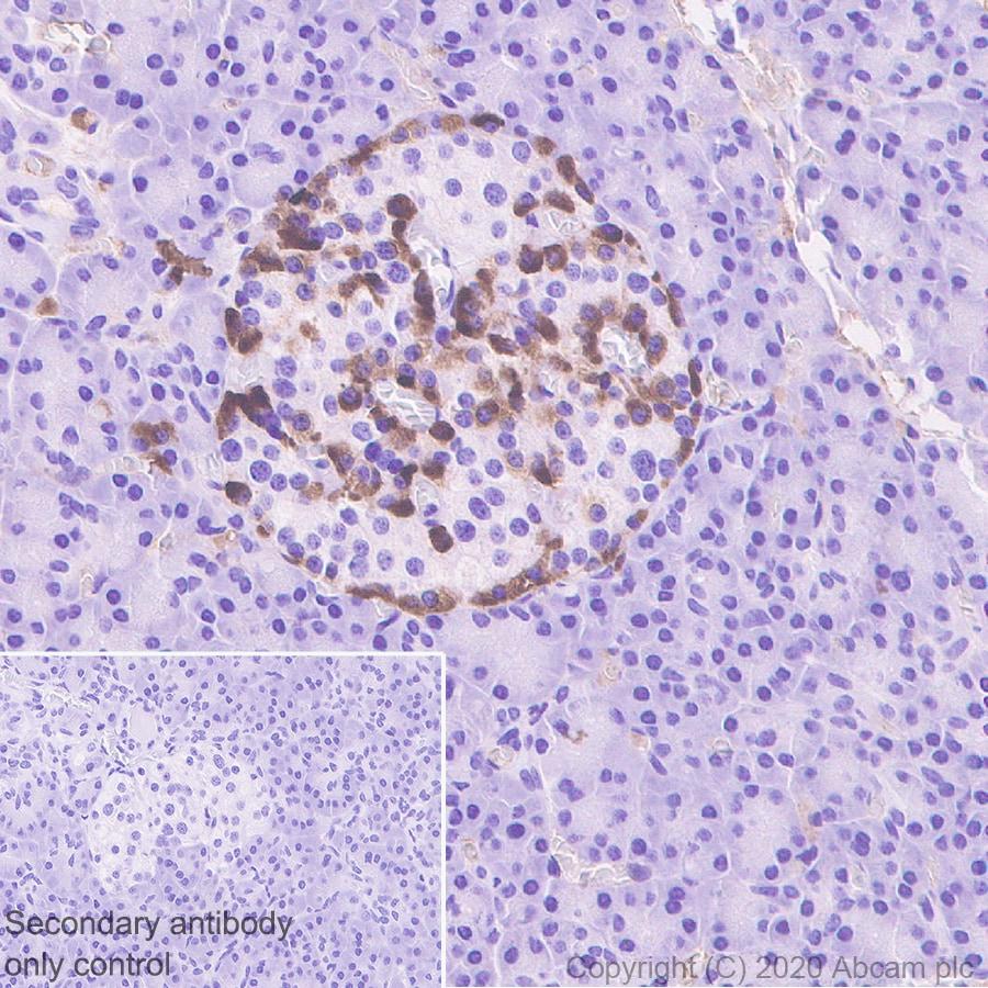 Immunohistochemistry (Formalin/PFA-fixed paraffin-embedded sections) - Anti-ZPI antibody [EPR23683-118] (ab273627)