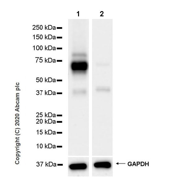 Western blot - Anti-ZPI antibody [EPR23683-118] (ab273627)