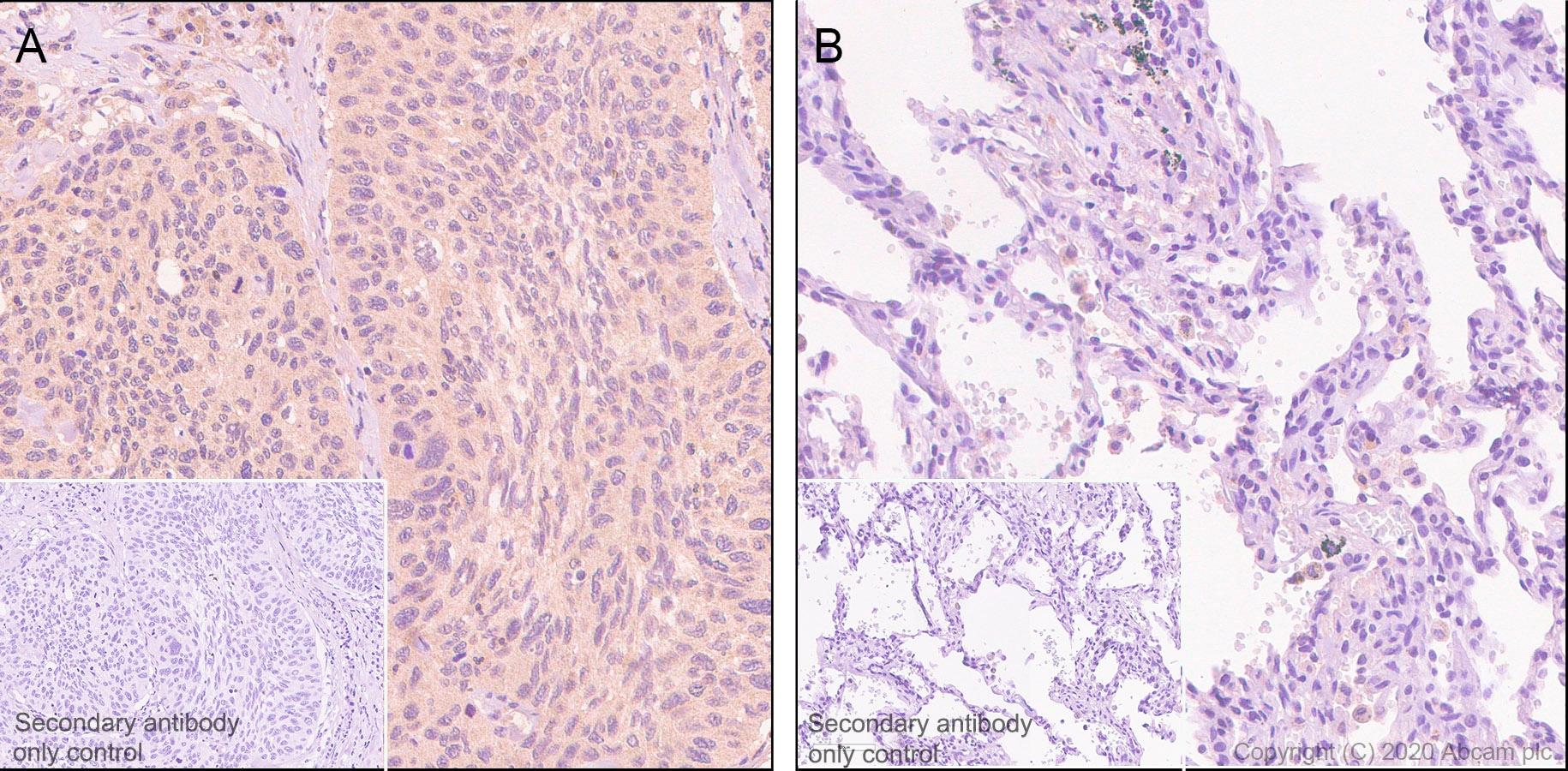 Immunohistochemistry (Formalin/PFA-fixed paraffin-embedded sections) - Anti-Aldolase antibody [EPR23181-39] - BSA and Azide free (ab273636)