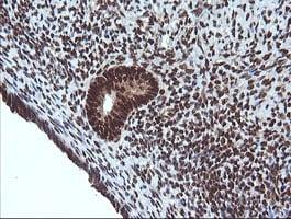 Immunohistochemistry (Formalin/PFA-fixed paraffin-embedded sections) - Anti-Von Hippel Lindau/VHL antibody [OTI1E1] - BSA and Azide free (ab273655)