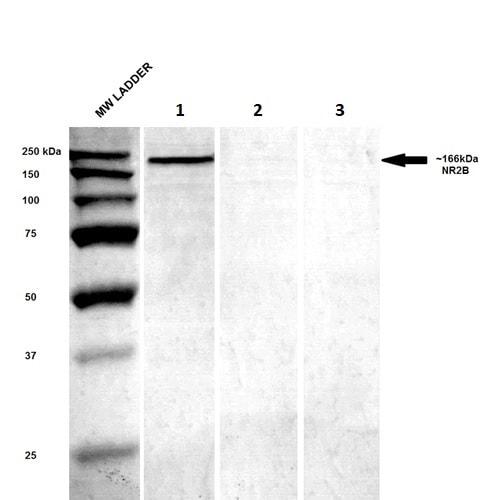 Western blot - Anti-NMDAR2B antibody [N59/36] (ab274365)