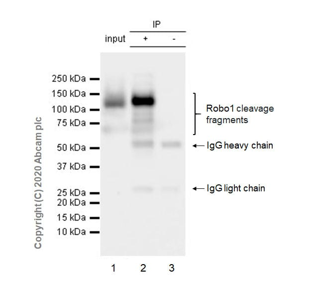 Immunoprecipitation - Anti-Robo1 antibody [EPR23699-159] - BSA and Azide free (ab274385)