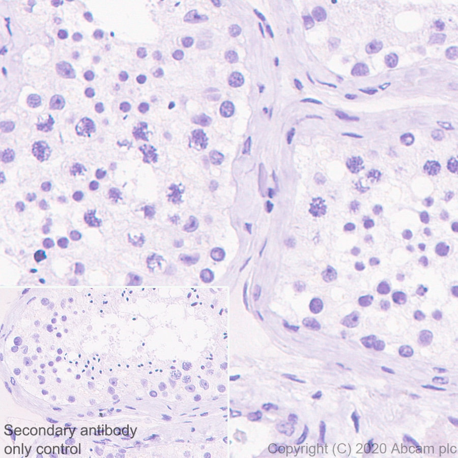 Immunohistochemistry (Formalin/PFA-fixed paraffin-embedded sections) - Anti-Histone H3.3 (mutated G34R) antibody [EPR23519-91] - ChIP Grade