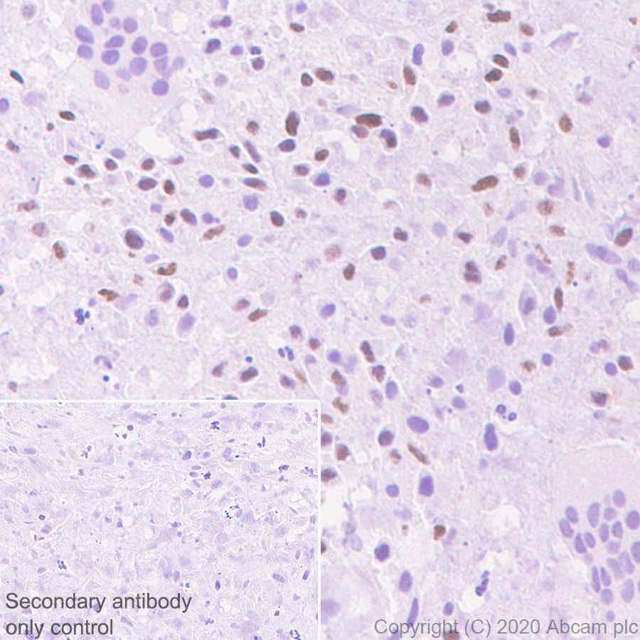Immunohistochemistry (Formalin/PFA-fixed paraffin-embedded sections) - Anti-Histone H3.3 (mutated G34 R) antibody [EPR23519-91] - ChIP Grade
