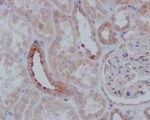 Immunohistochemistry (Formalin/PFA-fixed paraffin-embedded sections) - Anti-TSG101 antibody [EPR7130(B)]