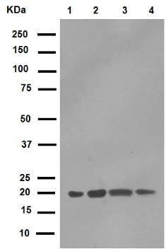 Western blot - Anti-CD81 antibody [EPR4244]