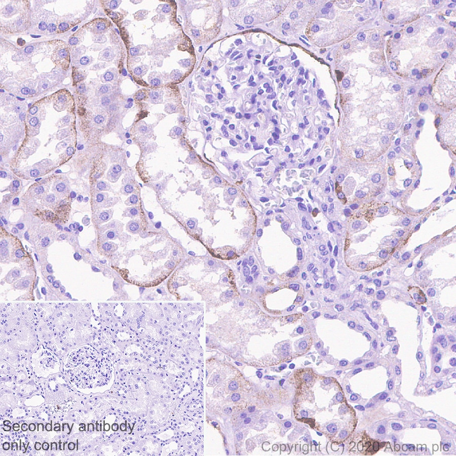 Immunohistochemistry (Formalin/PFA-fixed paraffin-embedded sections) - Anti-Polymeric immunoglobulin receptor/PIGR antibody [EPR23314-256] (ab275020)
