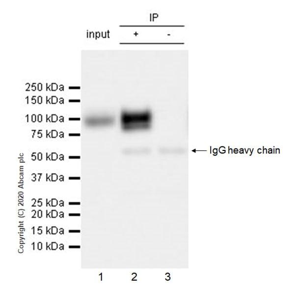 Immunoprecipitation - Anti-Polymeric immunoglobulin receptor/PIGR antibody [EPR23314-256] (ab275020)