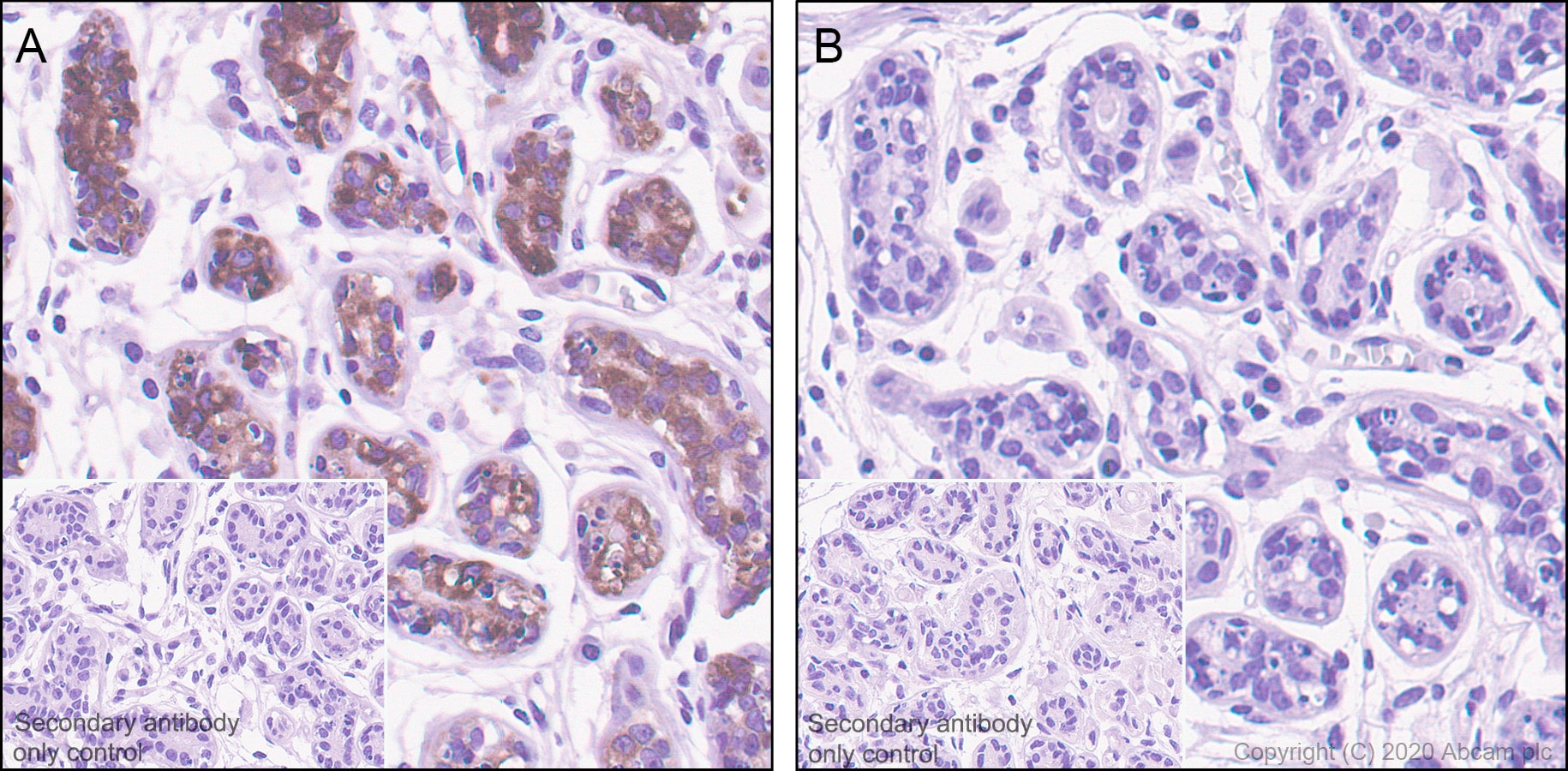 Immunohistochemistry (Formalin/PFA-fixed paraffin-embedded sections) - Anti-Tau (phospho T205) antibody [EPR23505-13] - BSA and Azide free (ab275027)