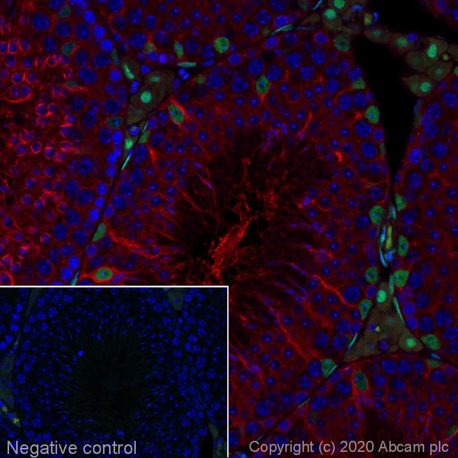Immunohistochemistry (Formalin/PFA-fixed paraffin-embedded sections) - Alexa Fluor® 555 Anti-Androgen Receptor antibody [EPR1535(2)] (ab275124)