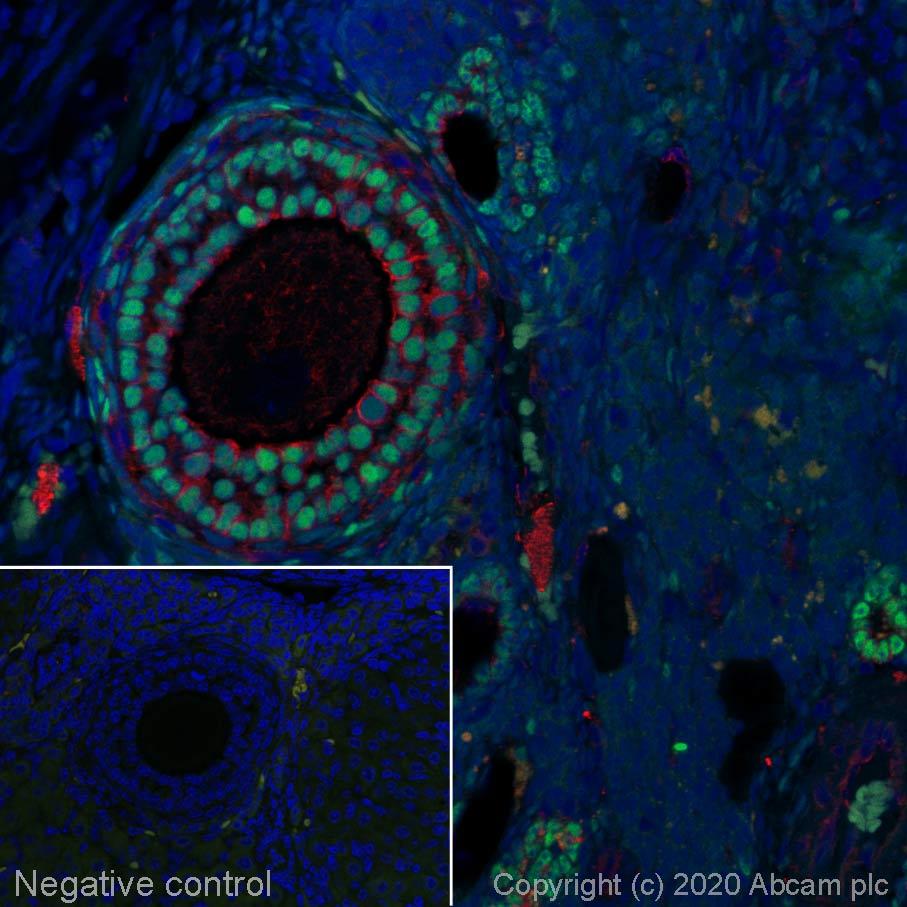 Immunohistochemistry (Formalin/PFA-fixed paraffin-embedded sections) - Alexa Fluor® 488 Anti-FOXL2 antibody [EPR23523-68] (ab275152)