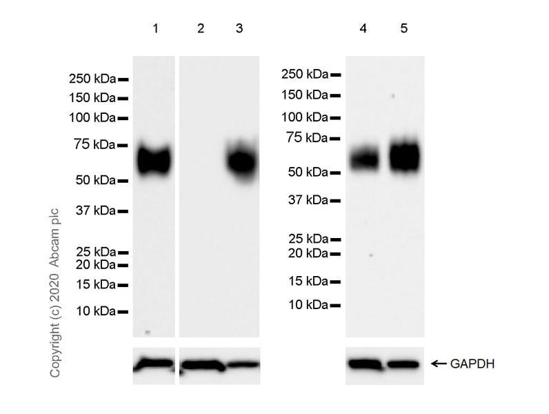 Western blot - Anti-CD58 antibody [EPR24012-147] (ab275392)