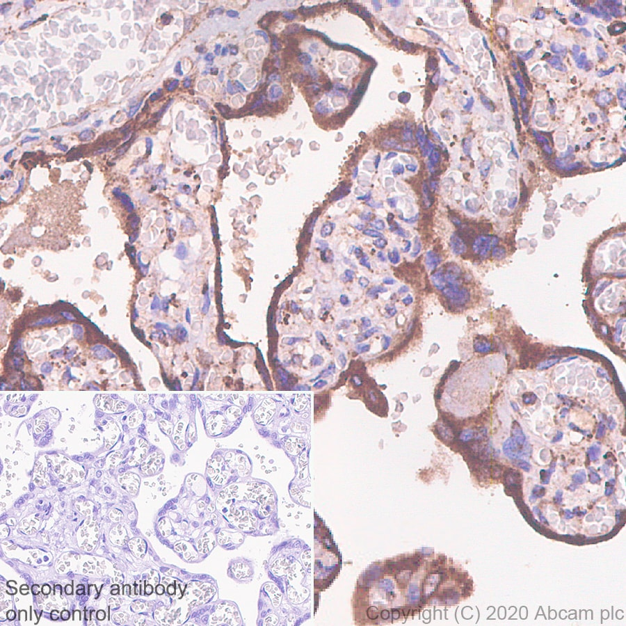 Immunohistochemistry (Formalin/PFA-fixed paraffin-embedded sections) - Anti-G-protein coupled receptor 30 antibody [EPR23701-79] - BSA and Azide free (ab275397)