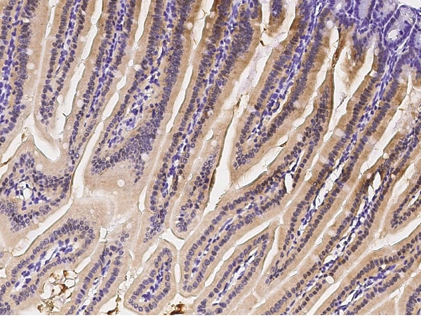 Immunohistochemistry (Formalin/PFA-fixed paraffin-embedded sections) - Anti-IRF6 antibody (ab275609)
