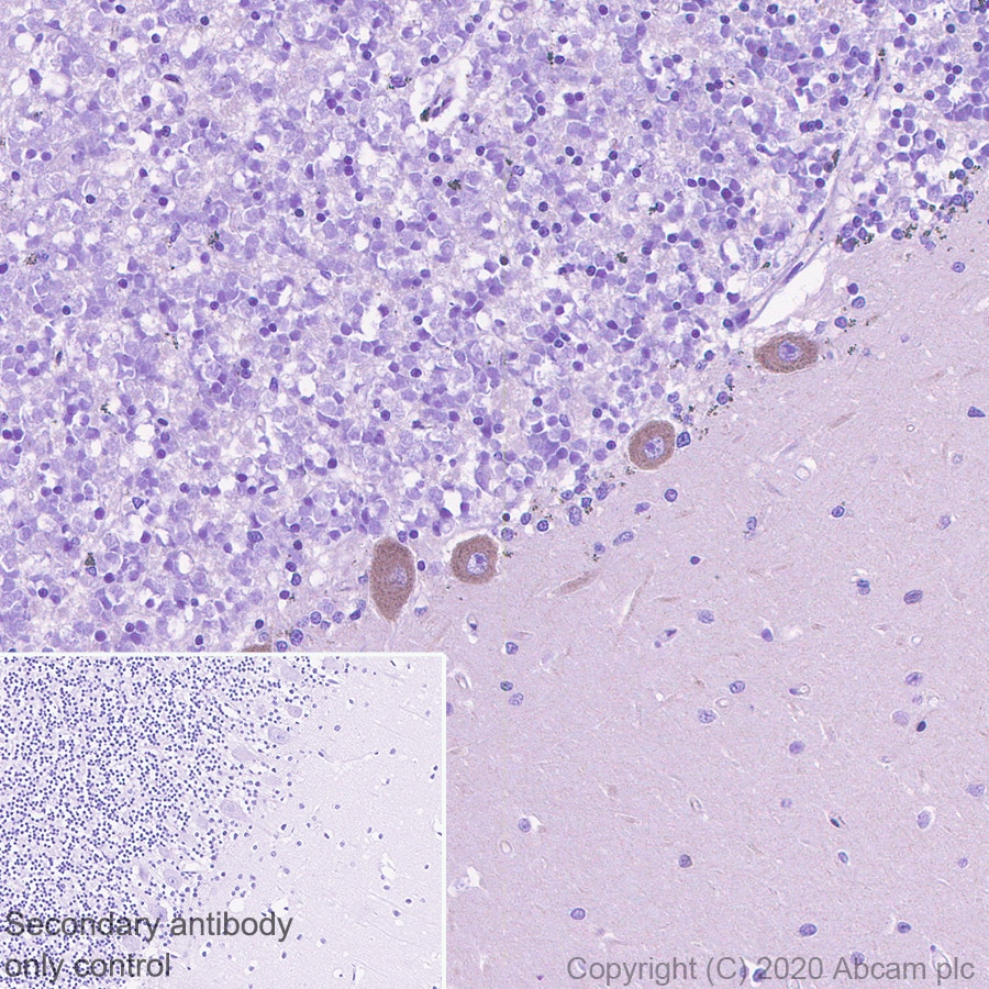 Immunohistochemistry (Formalin/PFA-fixed paraffin-embedded sections) - Anti-SCA2 antibody [EPR23630-49] - BSA and Azide free (ab275752)