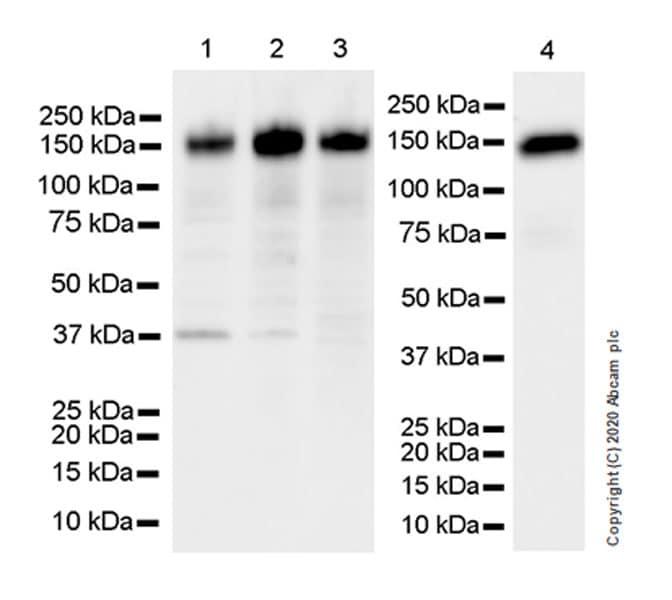 Western blot - Anti-SCA2 antibody [EPR23630-49] - BSA and Azide free (ab275752)