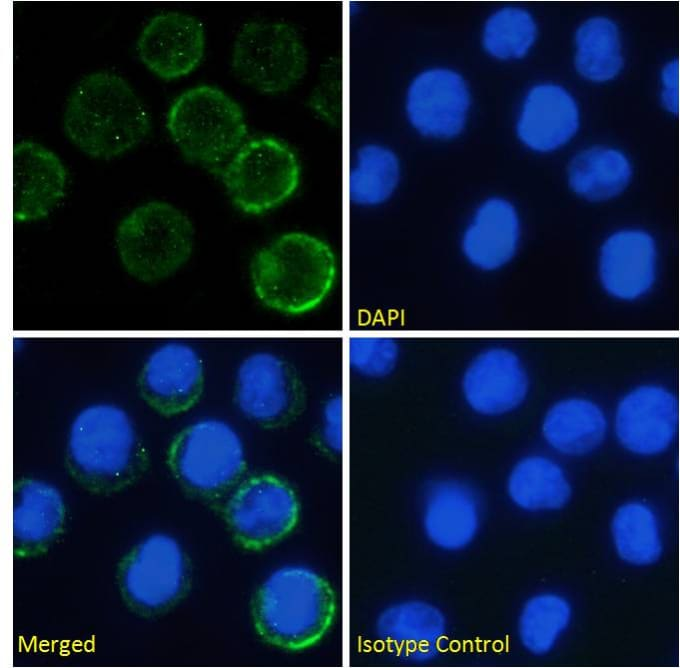 Immunocytochemistry/ Immunofluorescence - Anti-IL-6R antibody [rhPM-1 (Tocilizumab)] (ab275982)