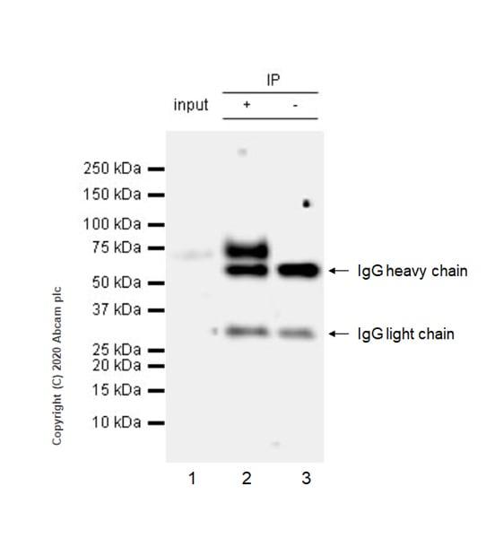 Immunoprecipitation - Anti-MICA antibody [EPR24086-121] - BSA and Azide free (ab276141)