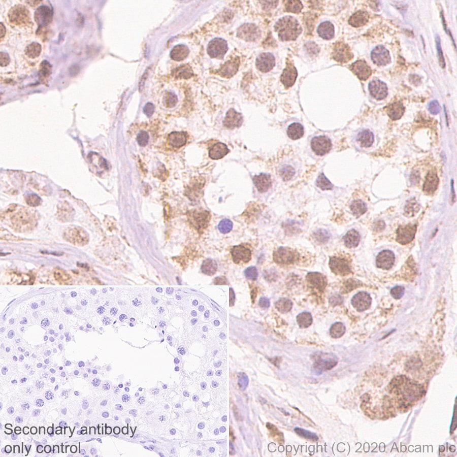 Immunohistochemistry (Formalin/PFA-fixed paraffin-embedded sections) - Anti-BRD9 antibody [EPR23888-5] - BSA and Azide free (ab277488)